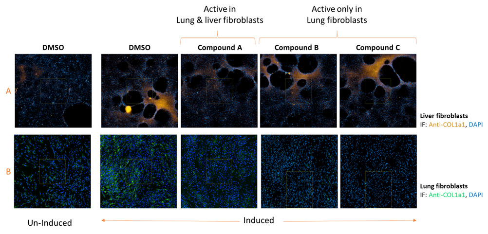 Anima's compounds for Lung Fibrosis were also tested in liver fibroblasts