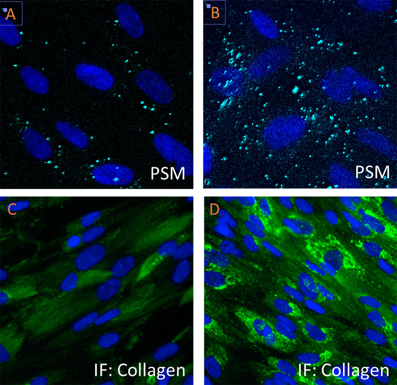 Translation of Collagen I mRNA in Human lung fibroblasts
