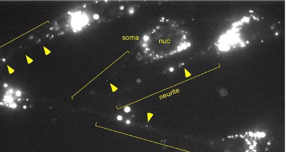 A heterogeneous tRNA granule structure exhibiting rapid, bi-directional neuritictransport